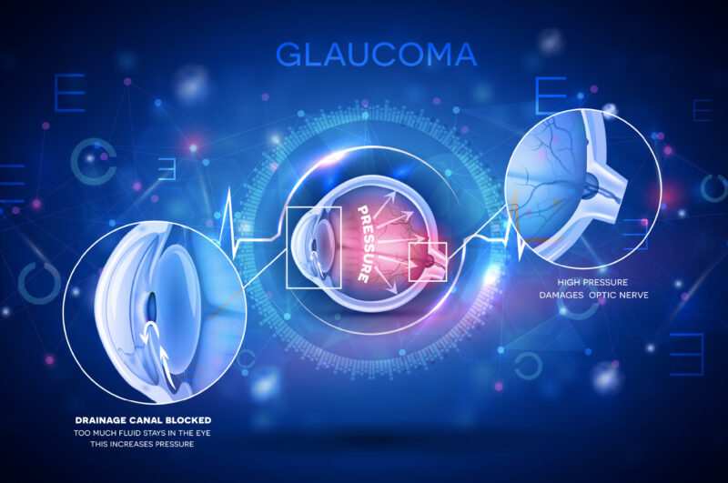 What-is-Glaucoma-in-humans