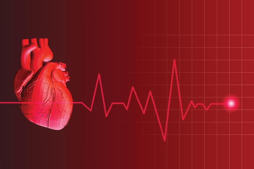 What_is_heart_rate_variability